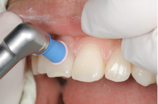 歯周病治療の様子