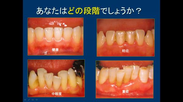 ①歯周病の段階
