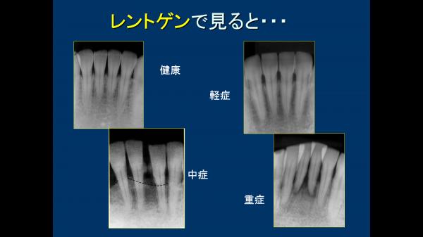 ②歯周病の段階 デンタル