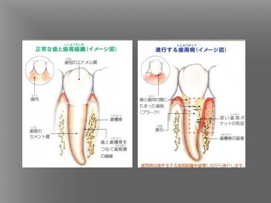 ③歯周病の進行